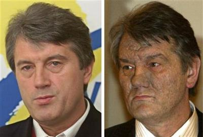 The picture combo shows Viktor Yushchenko in file photos dated March 28, 2002, left, and Dec. 6, 2004, right. The Ukrainian opposition leader and presidential candidate's mysterious illness that scared his face was caused by dioxin poisoning, doctors said Saturday Dec. 11, 2004, in Vienna, Austria. (AP Photo/Viktor Pobedinsky/Efrem Lukatsky)