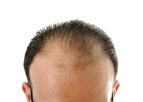 Bald male image via Shutterstock
