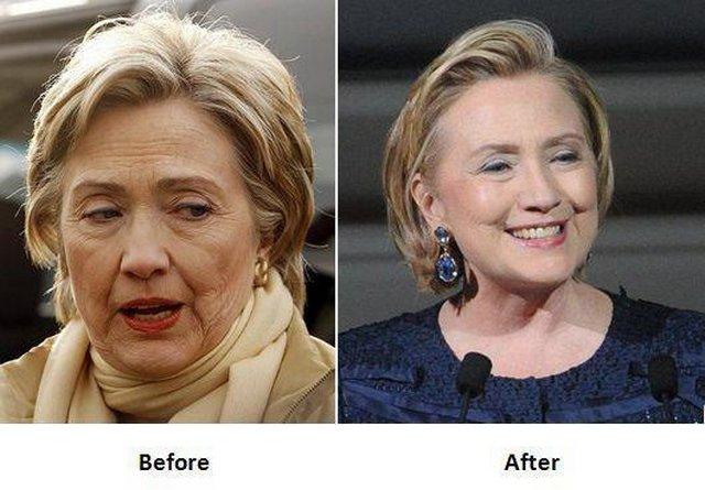 Clinton Hillary June  Surgery Home New York